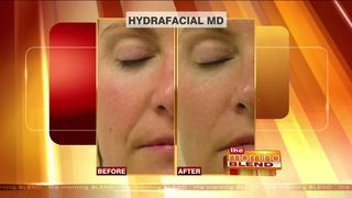 Cosmetic Treatments to Let You Go Makeup Free