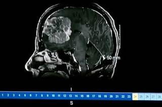 Grapefruit-size brain tumor removed from nurse