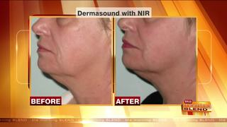 Combining Cosmetic Treatments for Best Results