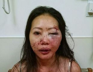 Attempted carjack victim shares what saved her