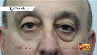 Eliminating Under-Eye Bags & Wrinkles in Minutes