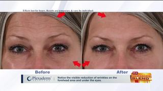 Reducing Key Signs of Aging in Minutes