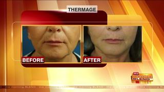 Tighten and Lift Your Skin Before the Holidays